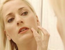 10 Des remèdes naturels pour la peau sèche et irritée