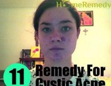11 Meilleur remède à la maison pour l'acné kystique