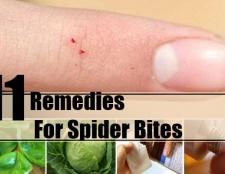 11 remèdes maison commune pour les piqûres d'araignées