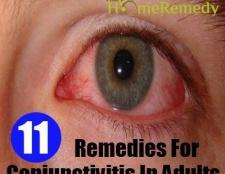 11 Accueil recours pour la conjonctivite chez les adultes