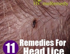 11 Accueil recours pour les poux de tête