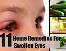 11 remèdes à la maison pour les yeux gonflés