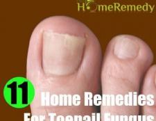 11 remèdes maison éprouvées pour mycose des ongles