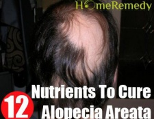 12 vitamines et nutriments essentiels pour guérir la pelade