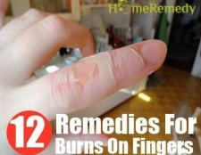 12 Accueil recours pour des brûlures sur les doigts