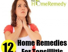 12 Accueil recours pour l'amygdalite