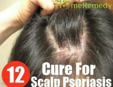 12 remède naturel pour psoriasis du cuir chevelu