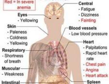 12 Des remèdes naturels pour l'anémie