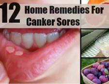 12 remèdes maison en suspens pour les aphtes