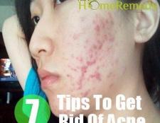 5 façons de se débarrasser de l'acné