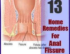 13 Accueil recours pour la fissure anale