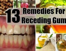 13 Accueil recours pour le recul des gencives