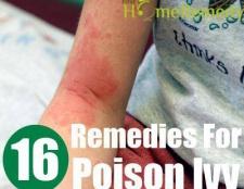 Top 16 remèdes maison pour le sumac vénéneux