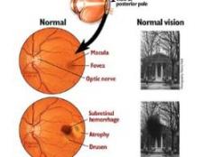 Meilleures vitamines pour la prévention de la dégénérescence maculaire