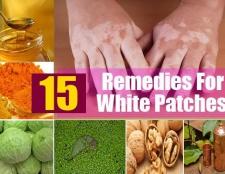 15 meilleurs remèdes maison pour les taches blanches