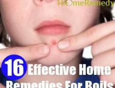 16 remèdes efficaces à domicile pour les furoncles