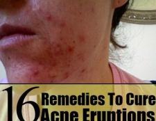 16 Accueil remèdes pour guérir les éruptions d'acné