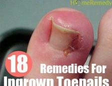 18 Accueil recours pour les ongles incarnés