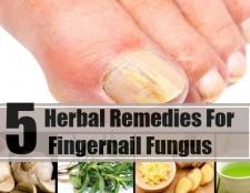 5 remèdes étonnants pour la mycose des ongles