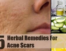 5 meilleurs remèdes pour les cicatrices d'acné