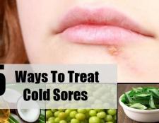 5 façons de traiter l'herpès labial