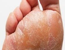 5 meilleurs remèdes maison pour la mycose des pieds