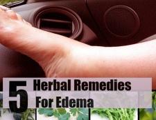 5 remèdes efficaces pour l'œdème