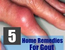 5 remèdes efficaces à domicile pour la goutte