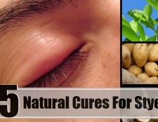 5 remèdes naturels efficaces pour orgelet