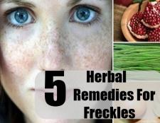 5 remèdes naturels pour les taches de rousseur