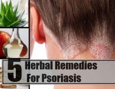 5 remèdes naturels pour le psoriasis