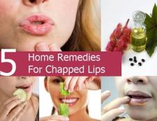 5 Accueil recours pour les lèvres gercées