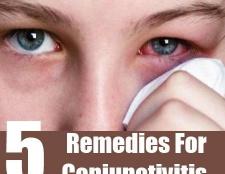 5 Accueil recours pour la conjonctivite