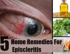 5 Accueil recours pour episcleritis