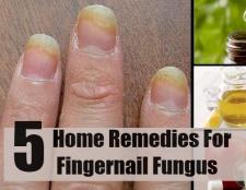 5 remèdes maison pour la mycose des ongles