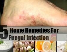 5 remèdes maison pour les infections fongiques