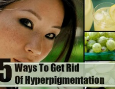 5 façons de se débarrasser de l'hyperpigmentation