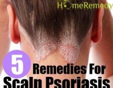 5 Accueil recours pour psoriasis du cuir chevelu