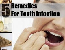 5 Accueil recours pour infection dentaire