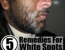 5 remèdes maison pour les taches blanches sur la peau