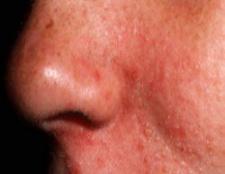 5 plus importantes options de traitement de l'alimentation pour la dermatite séborrhéique