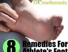 Top 8 des remèdes maison pour le pied d'athlète