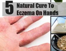 5 remède naturel pour l'eczéma sur les mains
