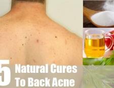 5 remèdes naturels pour l'acné de retour