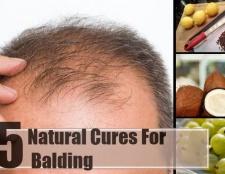 5 remèdes naturels pour la calvitie