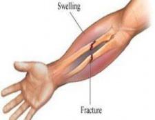 5 remèdes naturels pour les fractures