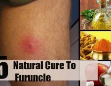 5 remèdes naturels pour furoncle