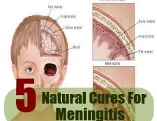5 remèdes naturels pour la méningite