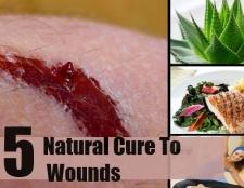5 remèdes naturels pour les plaies