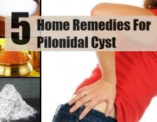 5 remèdes maison simples pour kyste pilonidal